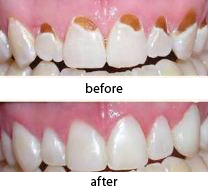 naturesdental dr olga isaeva Biomimetic fillings